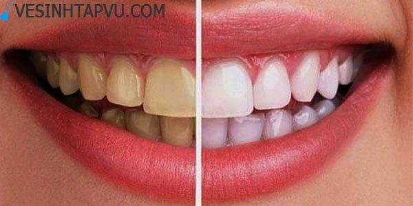 Tẩy trắng răng với 5 nguyên liệu tự nhiên tại nhà